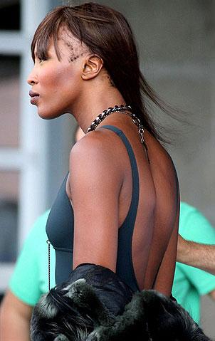 alopecia-Queda-de-cabelo-naomi-Campbell-modelo-top