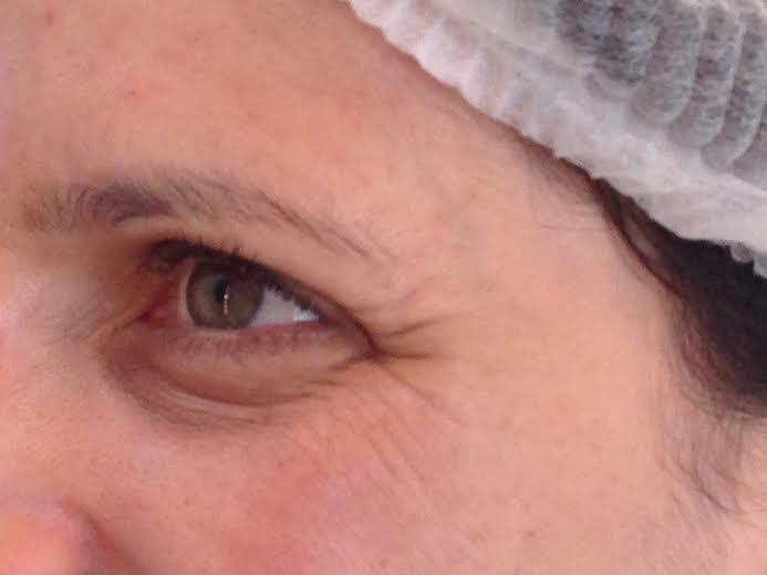 tratamento estético facial radio frequência3