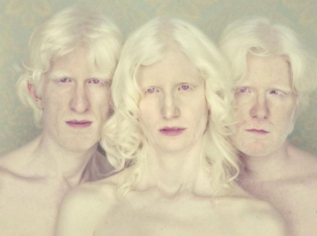albinismo-pessoas-albinas 4