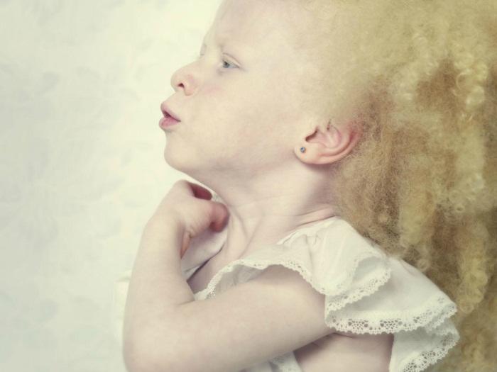 albinismo-pessoas-albinas-criança