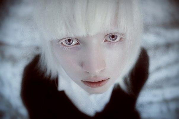 albinismo-pessoas-albinas-crianças 2