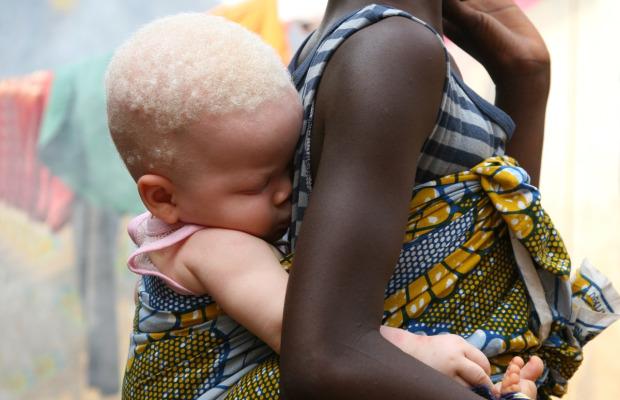 albinismo-pessoas-albinas-crianças-africanas 2