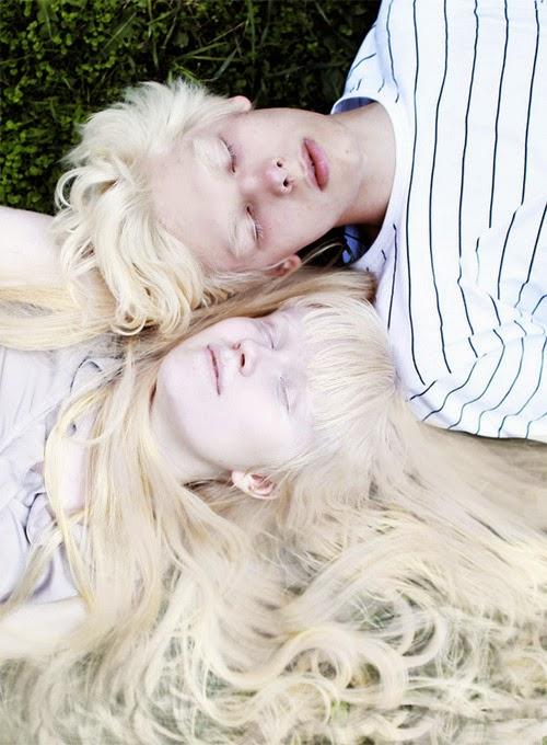 albinismo-pessoas-albinas-irmãos-albinos