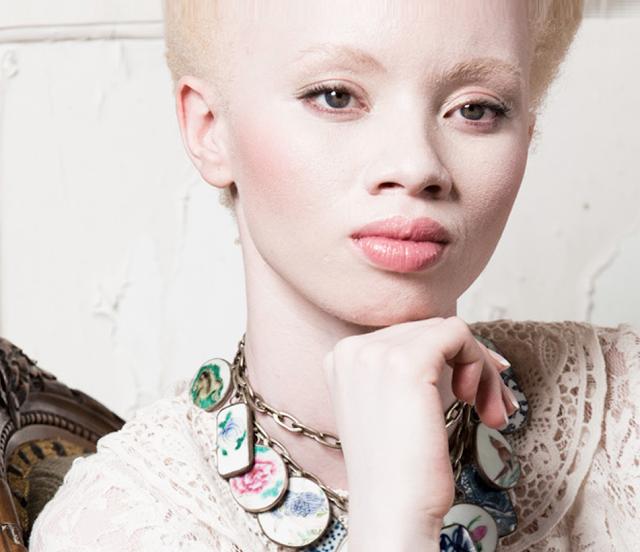 albinismo-pessoas-albinas-modelo-Thando Hopa