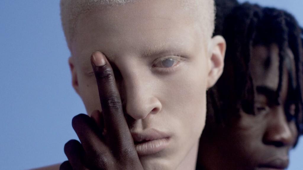 albinismo-pessoas-albinas-modelos