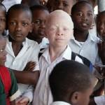 Fotos incríveis de pessoas com albinismo!