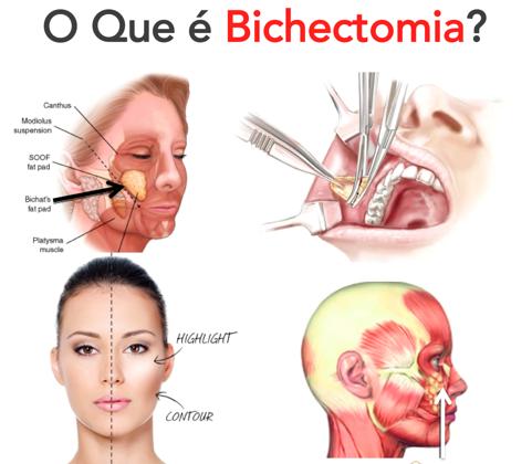 Bichectomia: prós e contras da alteração do formato de rosto!