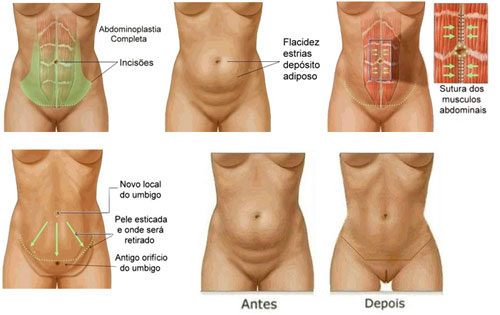 abdominoplastia sutura dos músculos abdominais diastase no pós parto