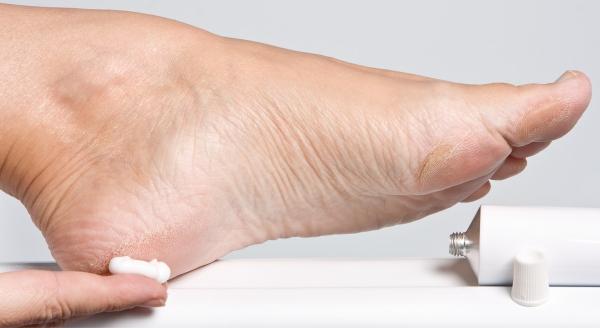 envelhecimento pés rachados e ressecados