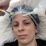 A radiofrequência para tratamento de flacidez facial: plástica sem cortes.