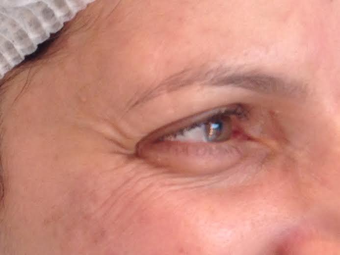 tratamento estético facial radio frequência2