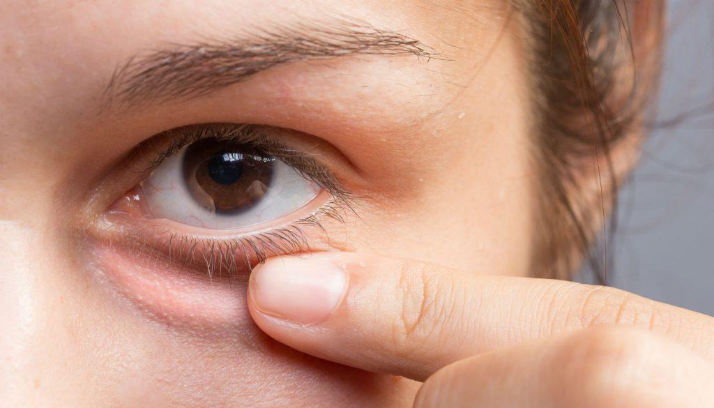 Como disfarçar olheiras e bolsas com maquiagem por Alessandra Faria